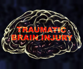 Anything but Fine: My Traumatic Brain Injury: Part 2